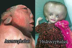 الهيدروسيفالوس : أشخاص بلا ادمغة