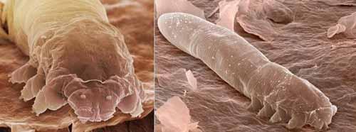 الحشرة التي تعيش على وجهك