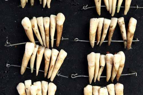اسنان بشرية